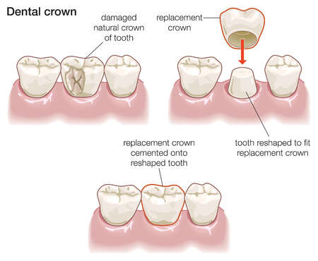 how to fix overjet using crowns