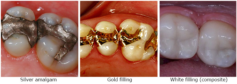 Cosmetic Fillings Dental Implant Laser Rajkot Gujarat